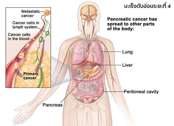 มะเร็งตับอ่อนระยะสุดท้าย