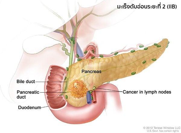 มะเร็งตับอ่อนระยะ2