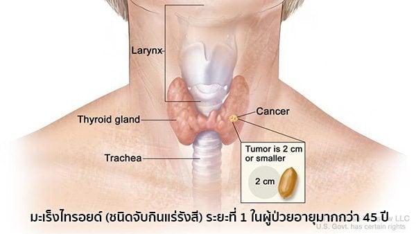 มะเร็งต่อมไทรอยด์ระยะที่1