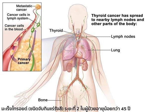 มะเร็งไทรอยด์ระยะที่2