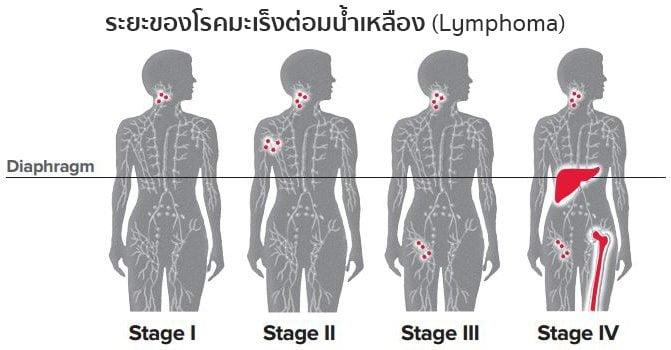 ระยะมะเร็งต่อมน้ำเหลือง