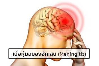 เยื่อหุ้มสมองอักเสบอาการ