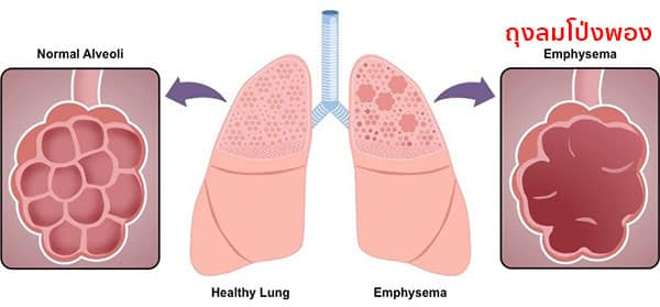 Emphysema คืออะไร