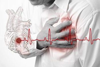 โรคหลอดเลือดหัวใจตีบ
