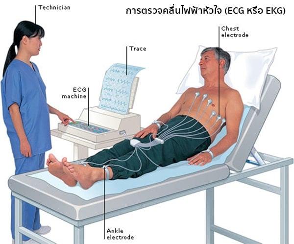 การตรวจคลื่นไฟฟ้าหัวใจ