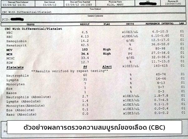 ตัวอย่างผลการตรวจความสมบูรณ์ของเลือด