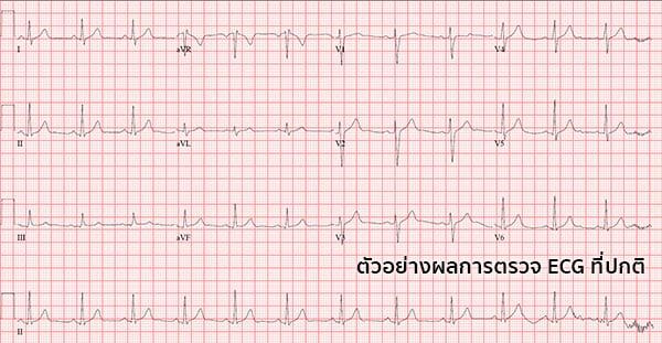ผลการตรวจคลื่นไฟฟ้าหัวใจ
