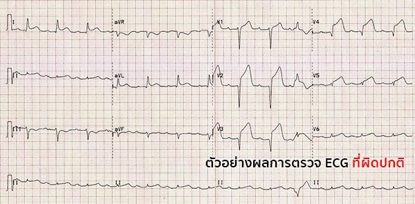 ผลตรวจคลื่นไฟฟ้าหัวใจ