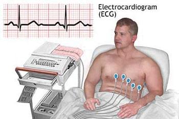 ECGคืออะไร