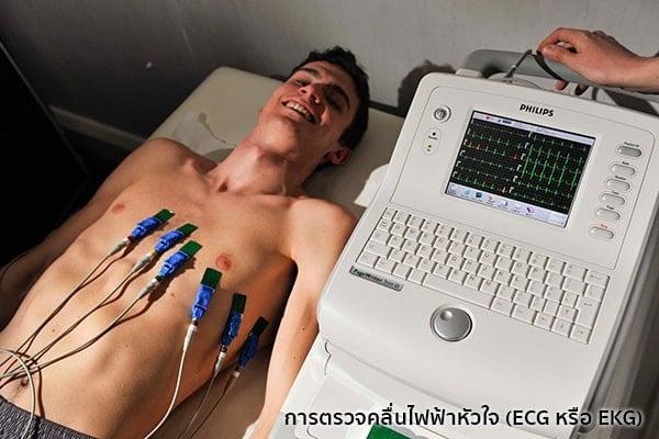 EKGคืออะไร