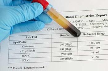 การตรวจระดับไขมันในเลือด