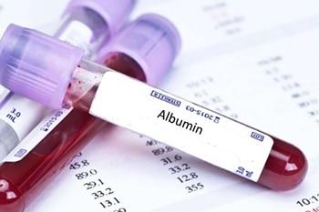 การตรวจ Albumin
