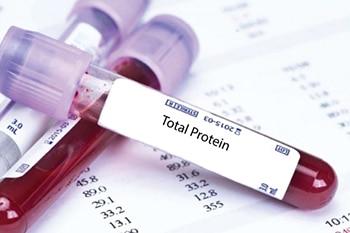 การตรวจ Total Protein