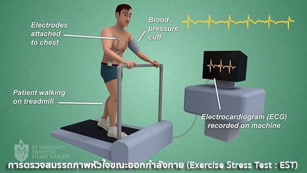 การตรวจ Exercise Stress Test