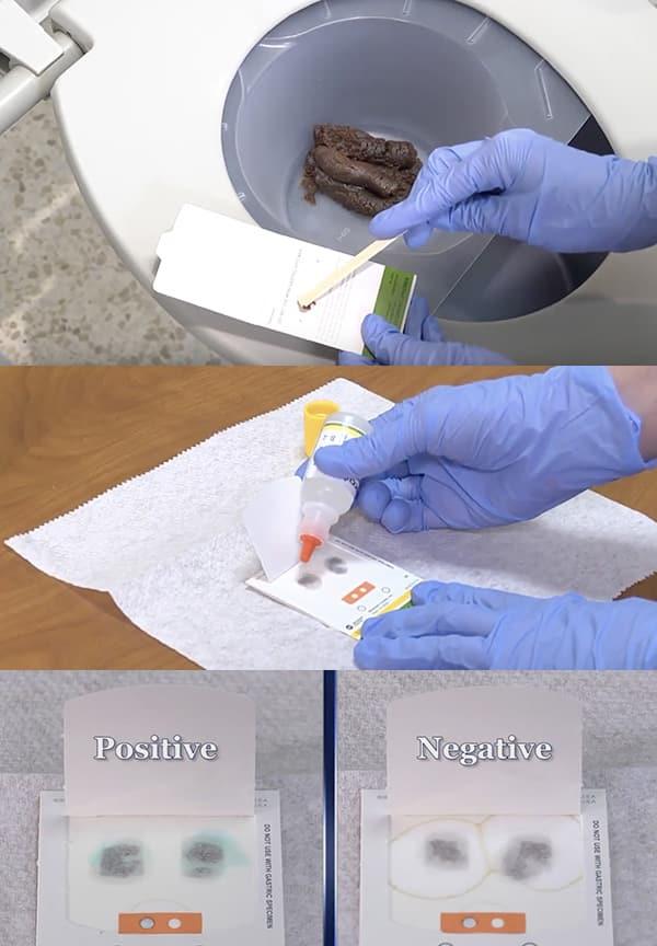 ขั้นตอนการตรวจหาเม็ดเลือดแดงในอุจจาระ