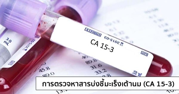 ผลการค้นหารูปภาพสำหรับ การตรวจ CA 15-3