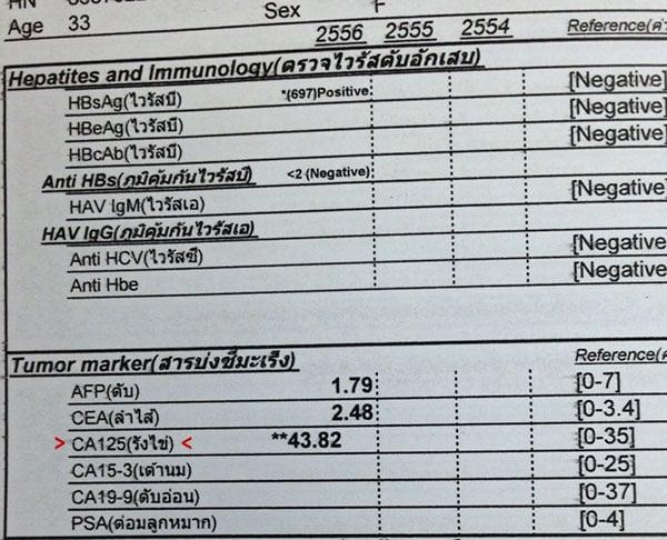 ผลตรวจ CA125