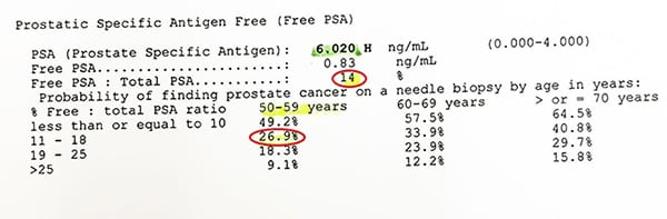 ผลตรวจ Free PSA