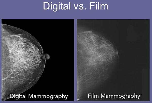เปรียบเทียบการตรวจแมมโมแกรมดิจิตอลกับฟิล์ม