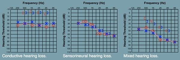 ประเภทของการสูญเสียการได้ยิน