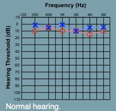 ผลตรวจการได้ยิน